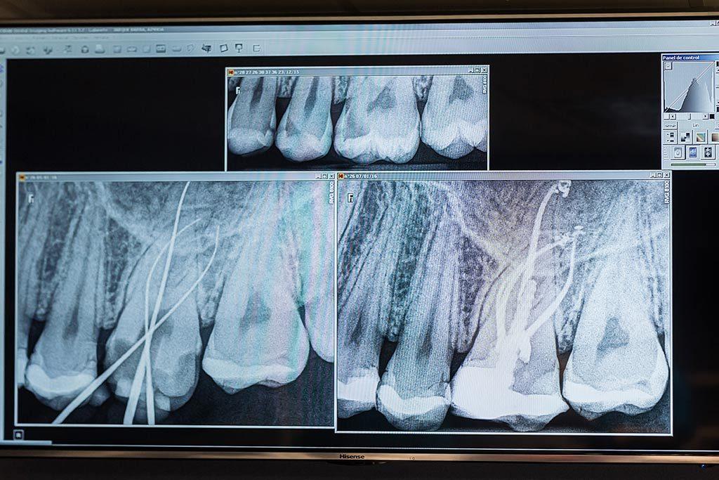 tratamientos-endodoncia