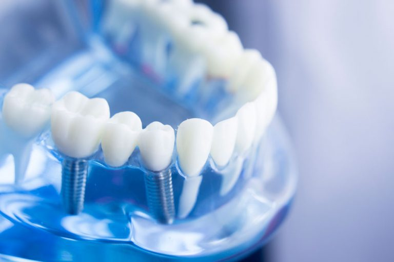 Implantes dentales en Zaragoza