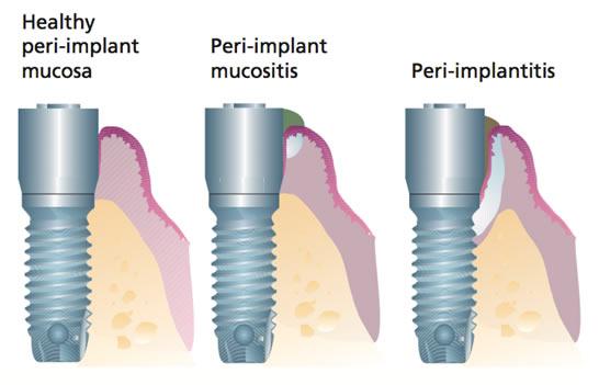 mucositits-perimplantitis