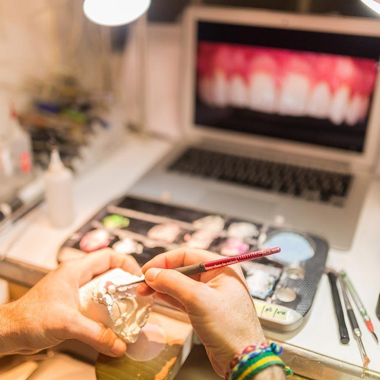 Prótesis dentales Cad Cam