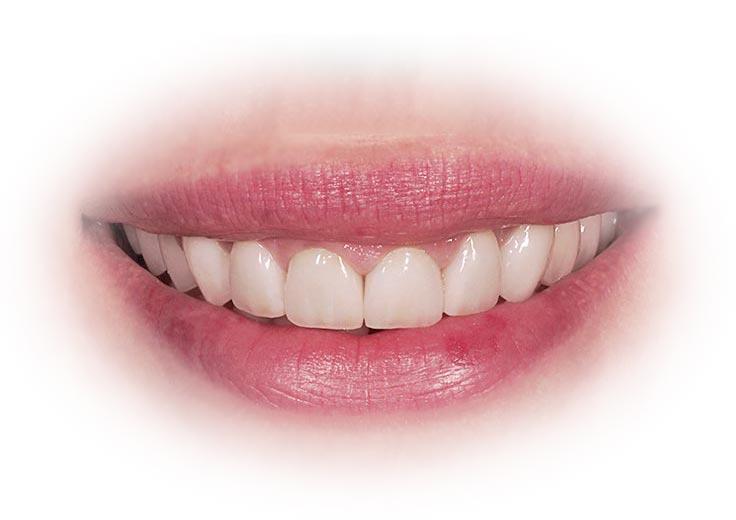 coronas_dentales_resultados