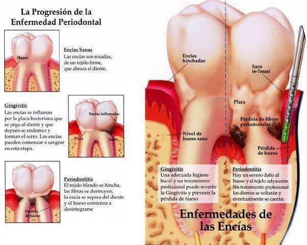 Progresión de enfermedad de las encías