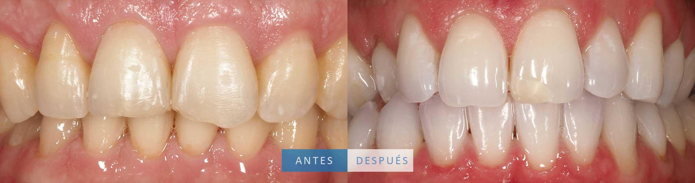 Caso de reconstrucción dental y blanqueamiento