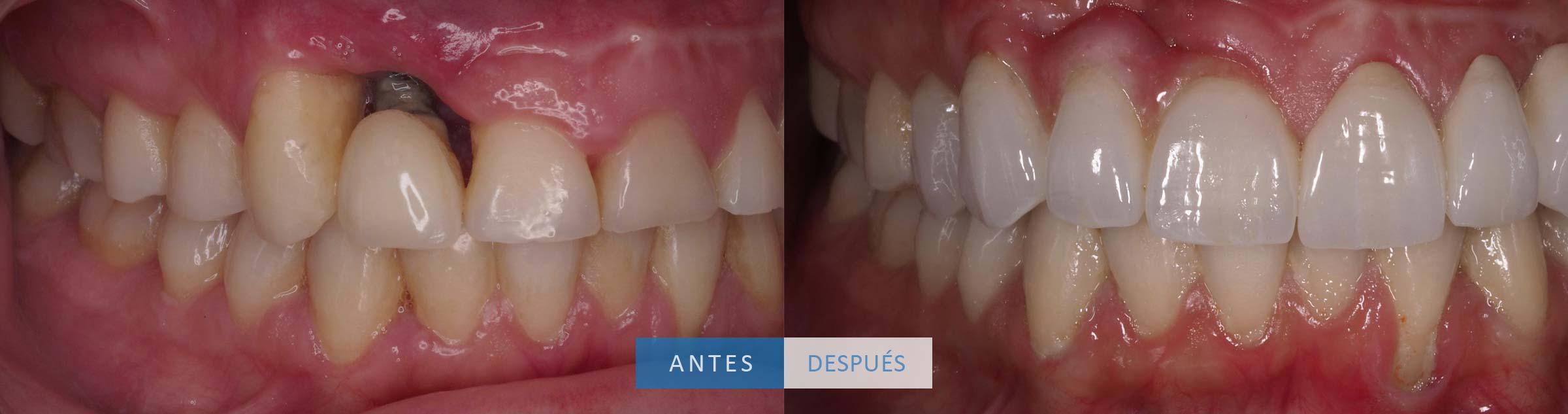 Caso clínico Loscos coronas dentales