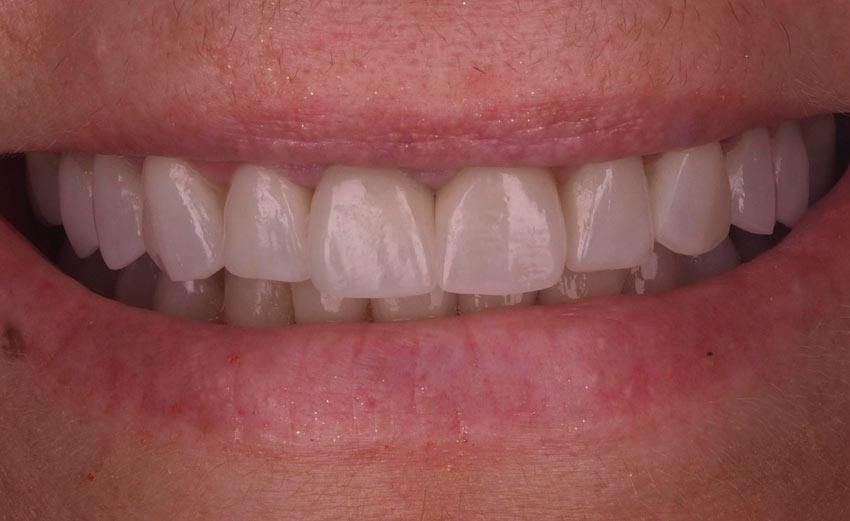 Coronas disilicato litio Loscos dental