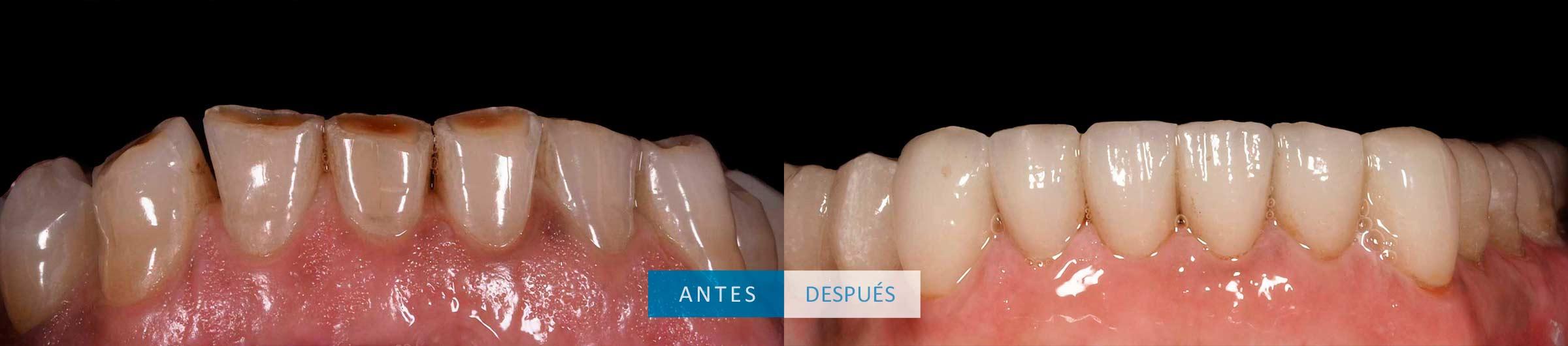 Dientes inferiores tratamiento con coronas dentales