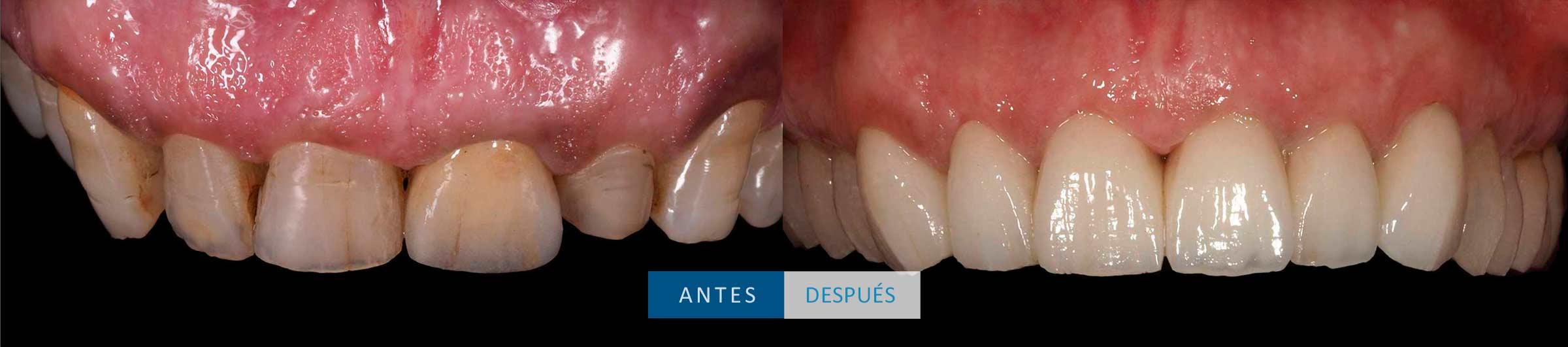 Dientes superiores tratamiento coronas dentales