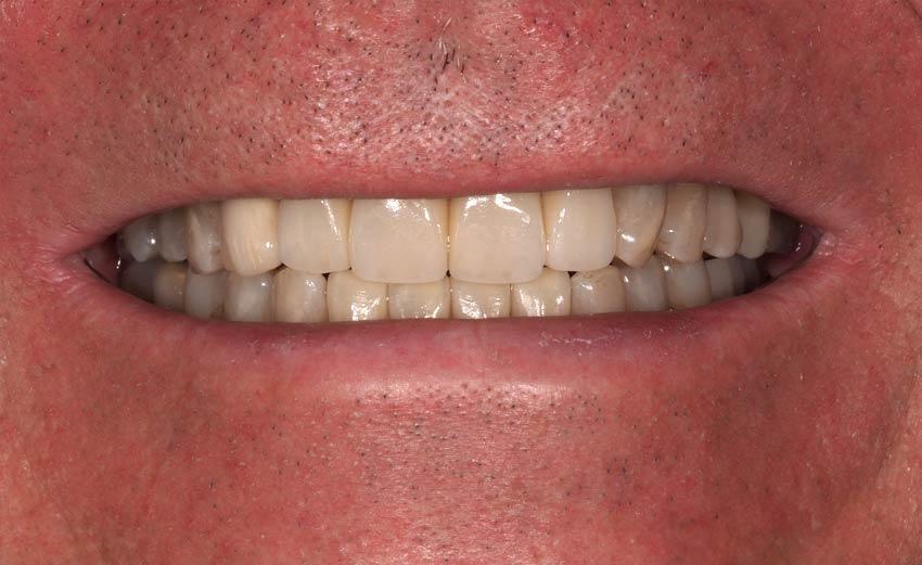 Final coronas dentales