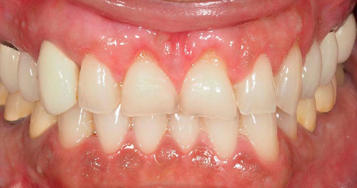 Microcirugía tratamiento gingival