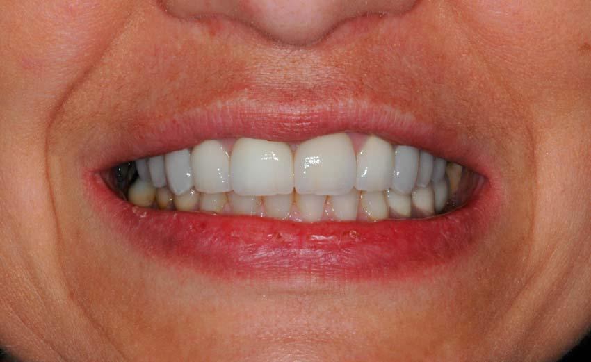 Resultado coronas dentales