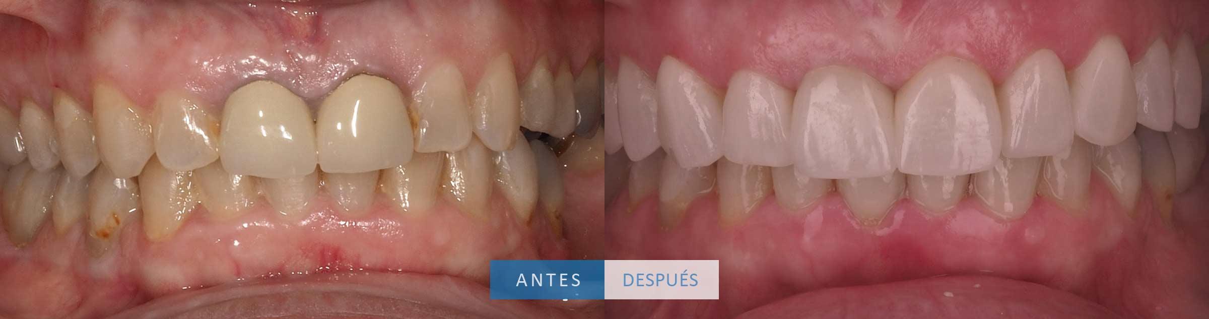 Resultado final coronas dentales