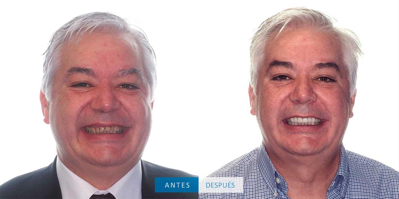 Resultado del tratamiento con coronas dentales