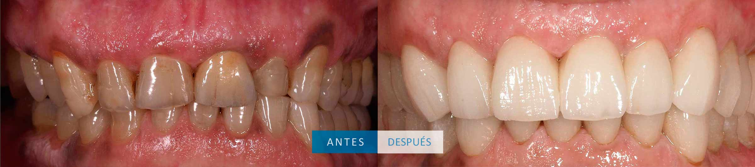 Tratamiento con coronas dentales